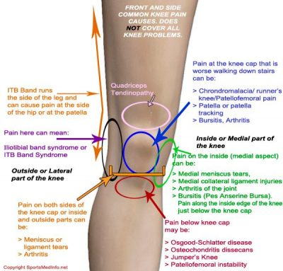 knee pain location chart