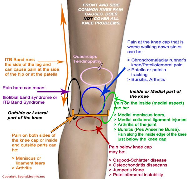 Knee Pain Location Chart The Chelsea Knee Clinic